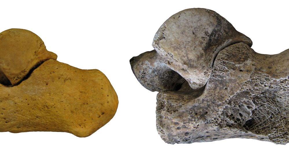 Nuevas formulas estadisticas para asignar el sexo a fosiles humanos