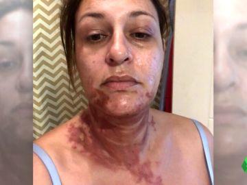 Dos mujeres sufren quemaduras por todo el cuerpo debido a un robot de cocina