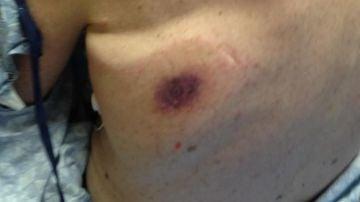 Espalda de Dave Bennet después de contraer la bacteria