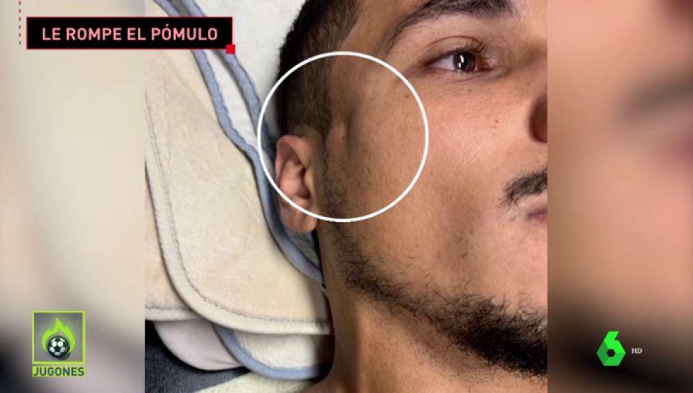 Impresiona: Ibrahimović le parte el pómulo a un rival de un brutal codazo