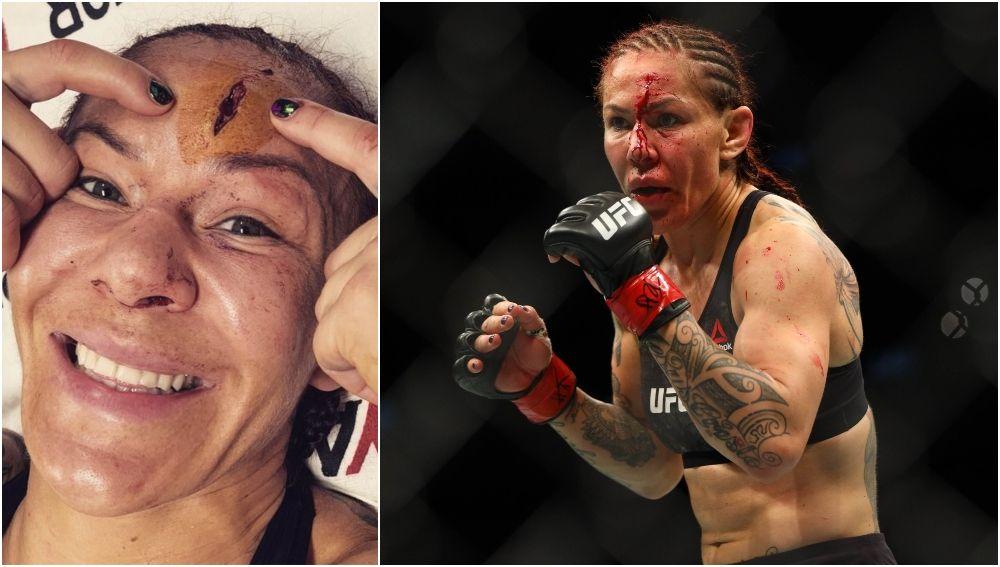 La aparatosa lesión de una luchadora de la UFC