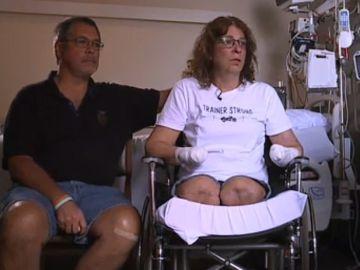 La mujer de Ohio que perdió sus extremidades tras ser lamida por su perro.