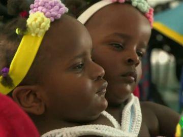 La dura decisión de un padre de siamesas: separarlas para salvar a una o arriesgarse a que puedan morir