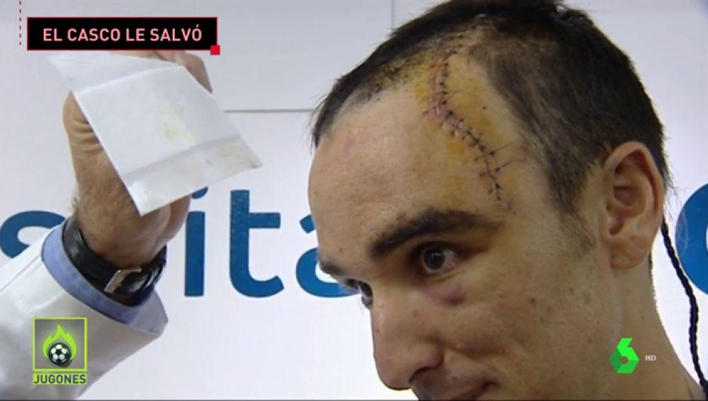 La grave caída de Luis Ángel Maté en la Vuelta a Polonia: más de 50 puntos de sutura y el casco le salvó la vida