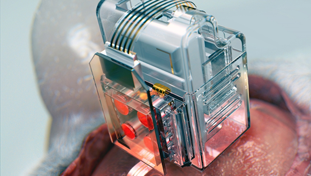 El implante cerebral en un roedor