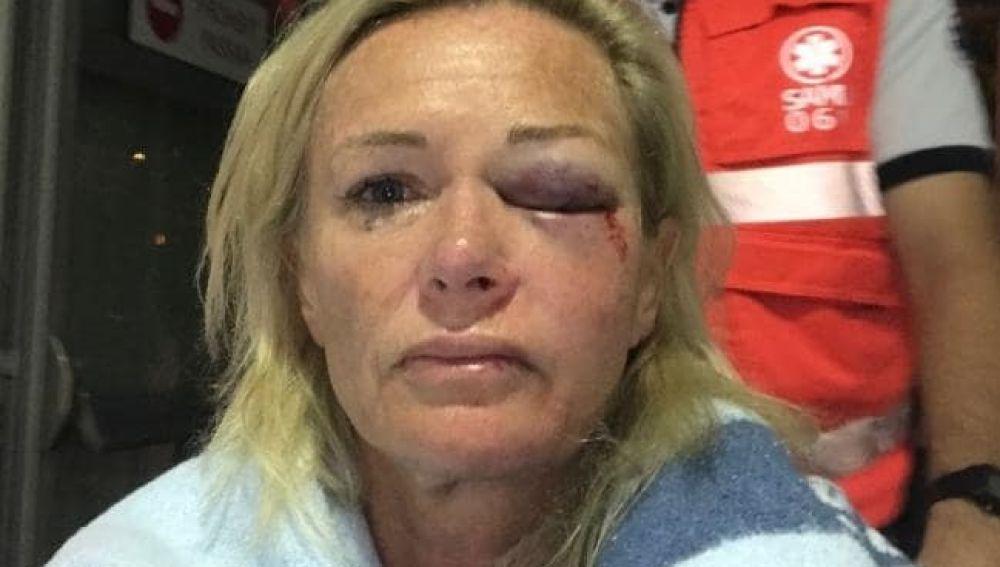 Karen Sadler, australiana que ha denunciado la agresión