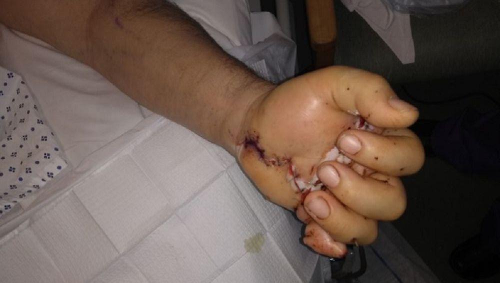 Mano del hombre después de la cirugía