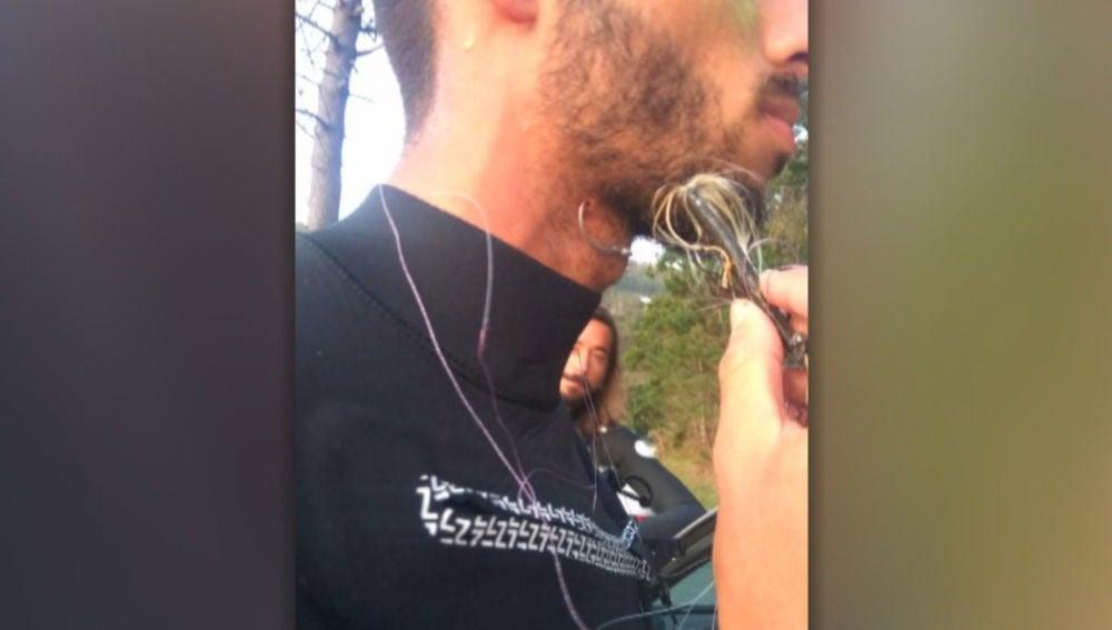 Juan Olaizola salió del agua con el anzuelo clavado en el cuello