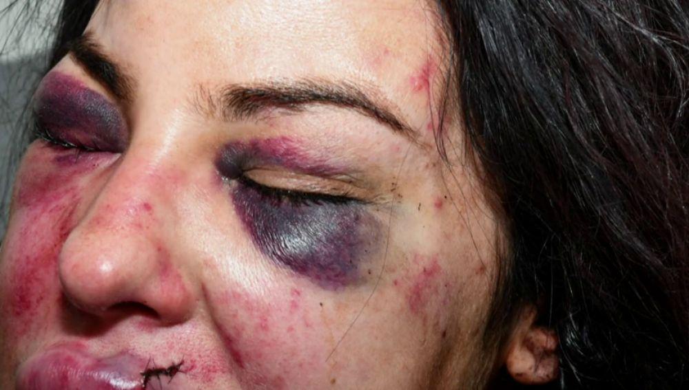 """""""¡Voy a matarte!"""": la estremecedora llamada de socorro de una mujer apuñalada por su exnovio"""