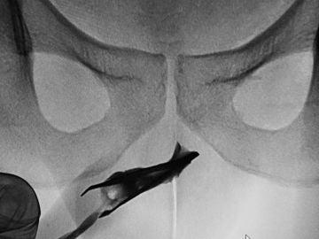 Los médicos descubrieron mediante una radiografía que el joven tenía unas pinzas de depilar en su interior.
