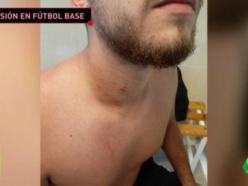 Un padre agrede brutalmente a un árbitro en un partido de alevines