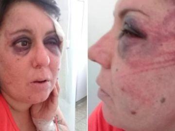 Fotos de las heridas y contusiones de Gisela Knorr difundidas por la familia