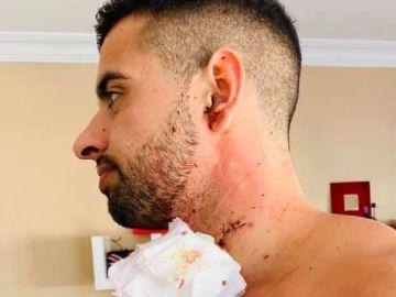 Juan Antonio Verdera ha recibido 17 puntos de sutura