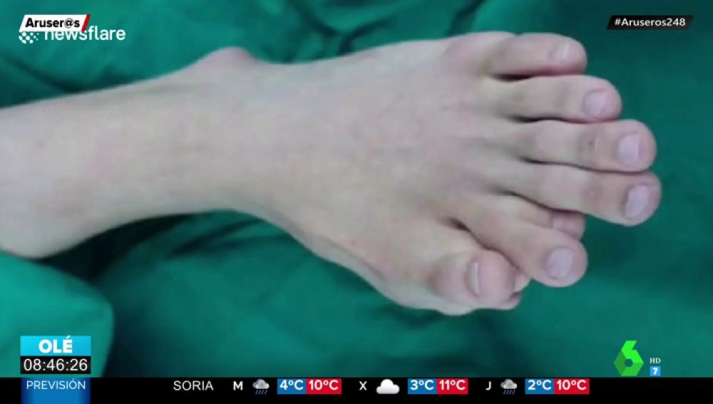 dedos pie