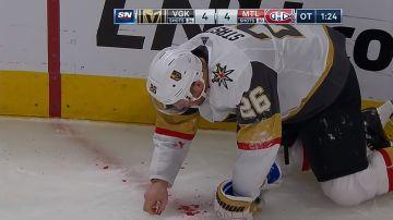 Paul Stastny golpeado accidentalmente por la pastilla