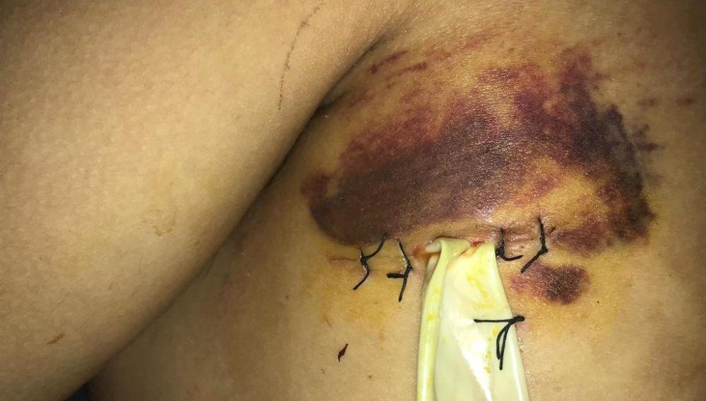 La herida del joven apuñalado en Santa Coloma