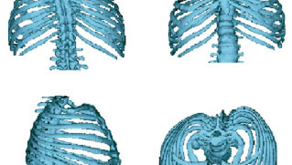 Imagen de análisis estadístico en 3D