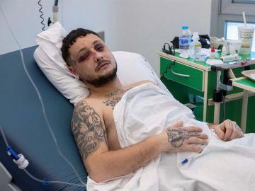 Raúl L., de 23 años, se recupera en el hospital de las heridas que sufrió en la madrugada del sábado cuando fue golpeado por la pareja de una mujer a la que trataba de proteger.