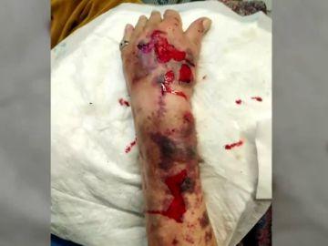 El brazo del anciano tras sufrir la agresión
