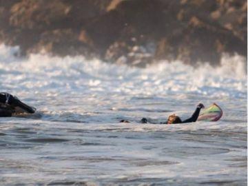 Billy Kemper se rompe la cadera tras caerse en una ola