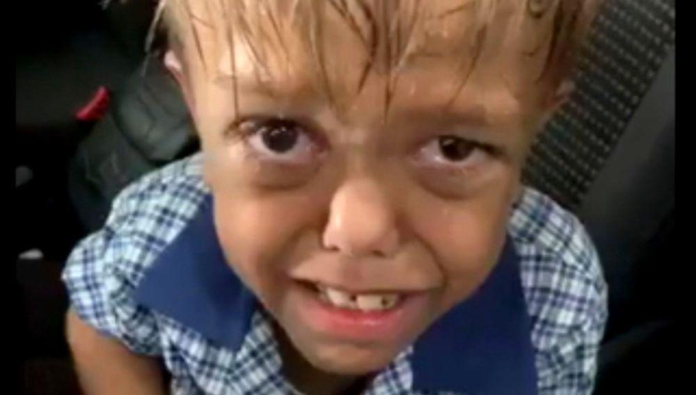 Quaden tiene 9 años y sufre Bullying constantemente en el colegio