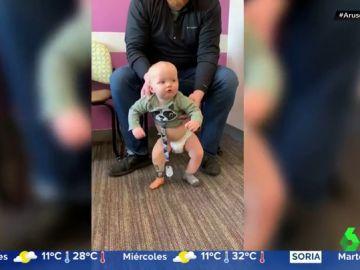 La ternura del pequeño Brooks: un bebé con una sola pierna que camina por primera vez