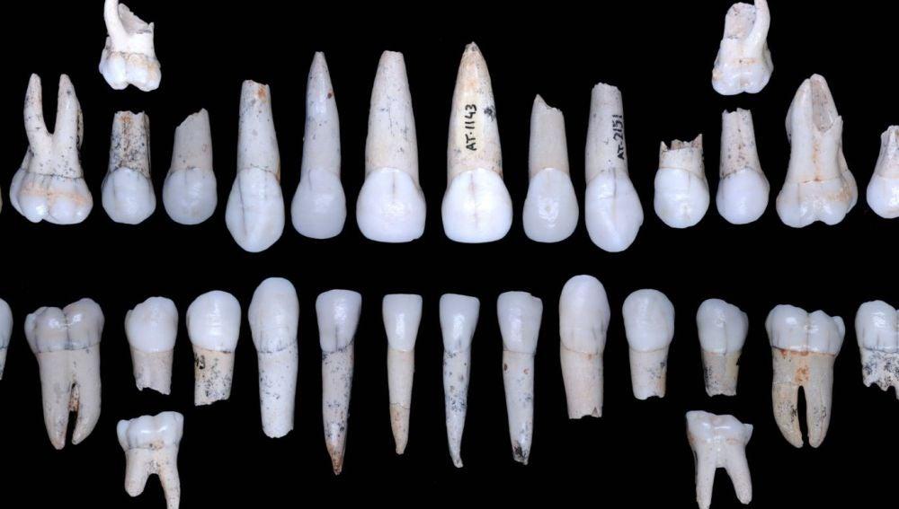 El esmalte de los hominidos de Atapuerca crecia mas rapido que el de los humanos modernos