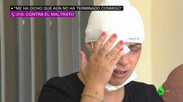 """El testimonio de la mujer que fue rociada con sosa cáustica en Girona: """"Cuando salga de la cárcel va a venir a por mí"""""""