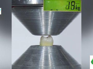 ¿Cuánta fuerza tiene un diente? El experimento que demuestra cuánto aguanta la dentadura humana