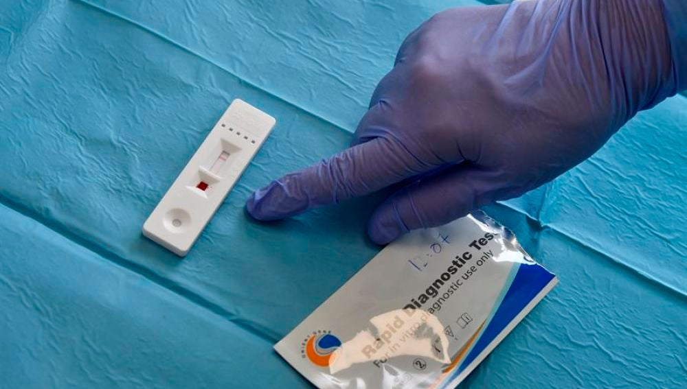 Test del coronavirus