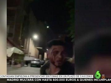 Omar Montes, ensangrentado tras una pelea