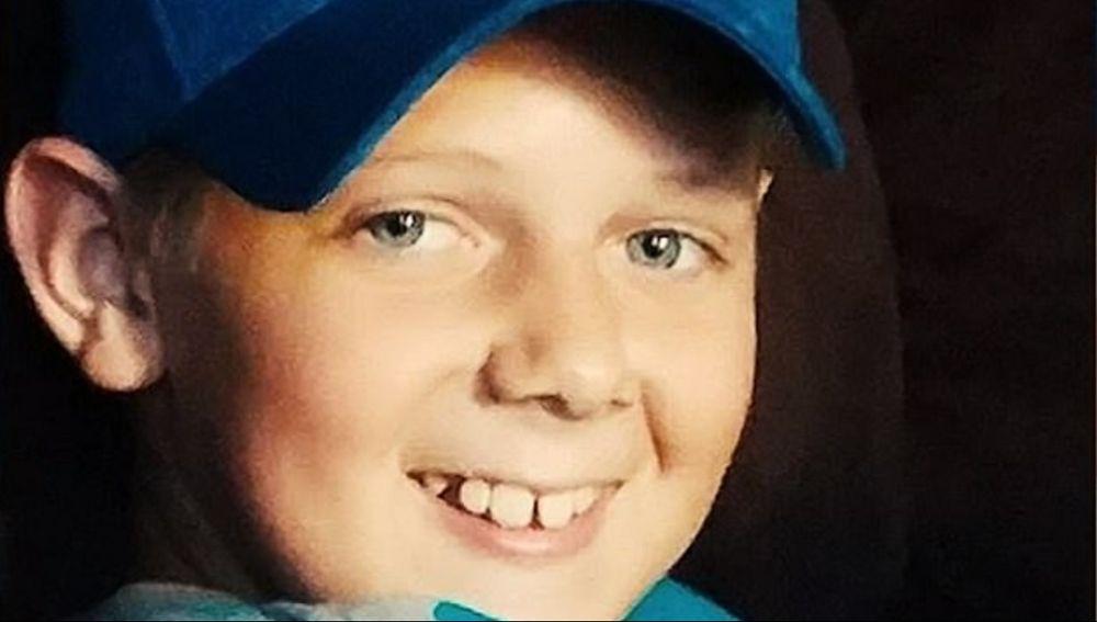 Muere Un Niño Tras Ser Infectado Por Una Ameba Comecerebros En Un Camping De Florida