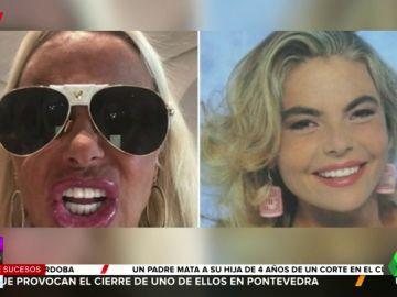 El retoque estético de Leticia Sabater con el que recupera su sonrisa de hace 25 años por 4.000 euros