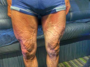 Las piernas de Rojas tras la séptima etapa