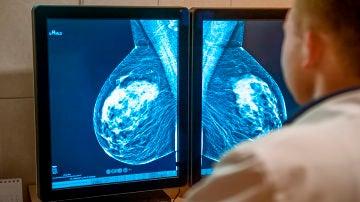 Algunas mujeres con cancer de mama podran evitar la quimioterapia