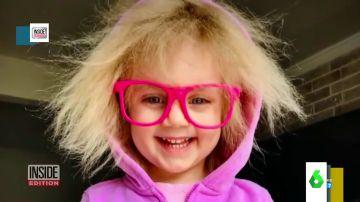 El síndrome del cabello impeinable: así es esta mutación de los genes que hace que el pelo crezca en todas las direcciones