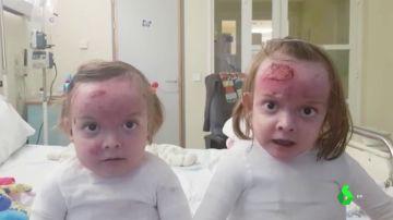 Carla y Noa, dos gemelas de seis años con piel de mariposa