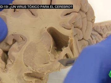 daños cerebro COVID