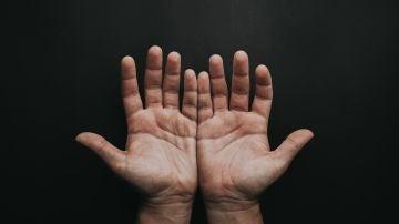 ¿Por qué se me duermen las manos? Las causas más frecuentes de esta molestia