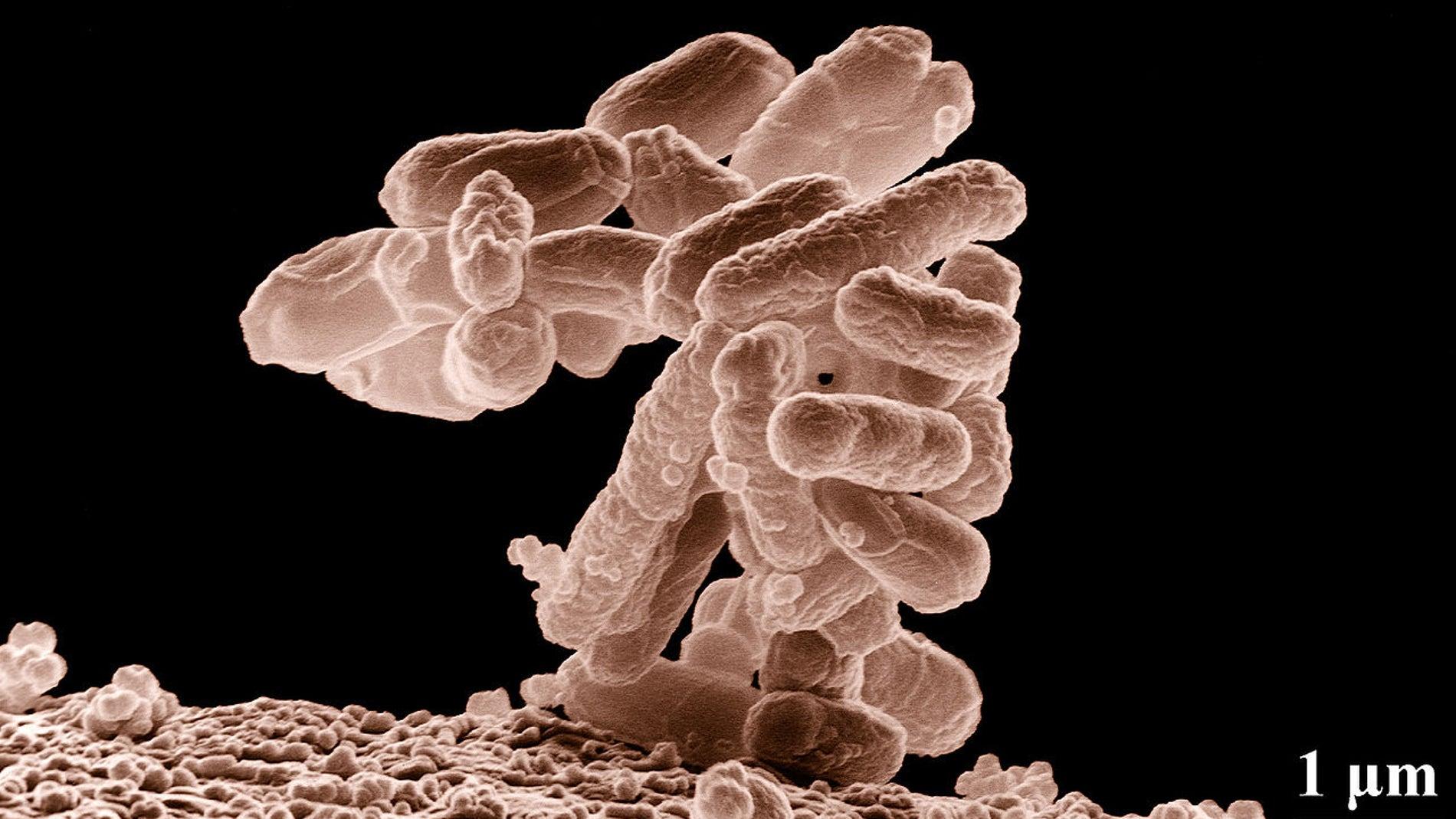 Micrografía electrónica de un cúmulo de bacterias E. coli ampliado cien mil veces