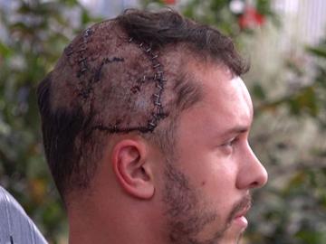 Heridas de la cabeza de Jeffrey Heim tras el mordisco de un cocodrilo
