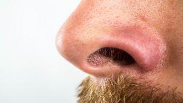 Cómo quitar los puntos negros de la cara de forma fácil