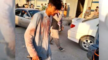 Un hombre herido en el atentado de Kabul.