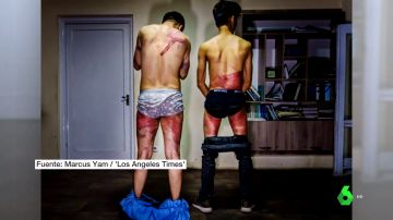 Periodistas afganos torturados por los talibanes