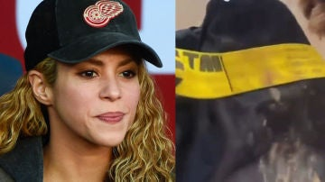 Shakira y su mochila tras ser atacada por dos jabalíes