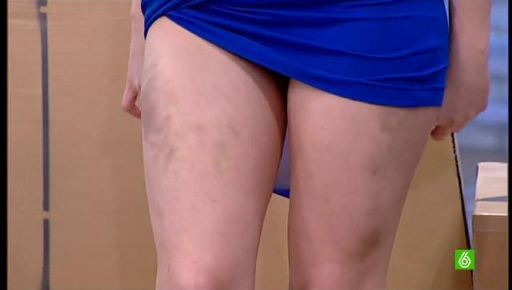 Las piernas de Daniela Blume tras saltar en Splash