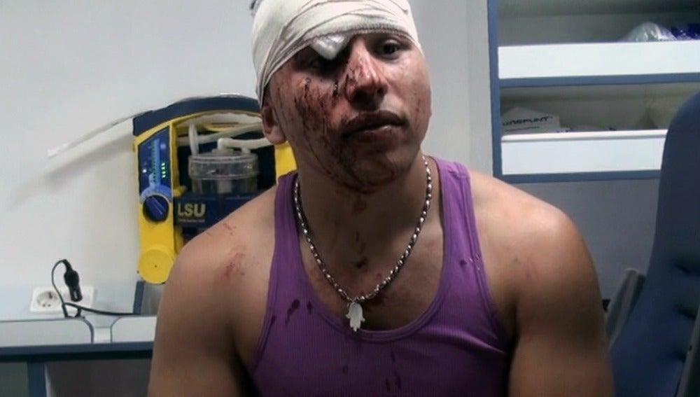 Joven agredido con un botellazo