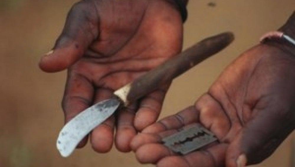 Cuchillas de afeitar, navajas o trozos de vidrio se emplean para realizar la ablación.