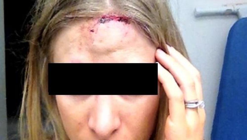 Una de las víctimas apedreadas a la salida del instituto en Murcia