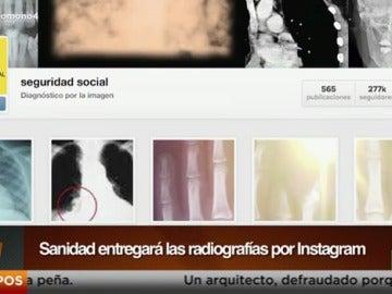 La Seguridad Social entregará las radiografías por Instagram
